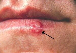 Types of herpes